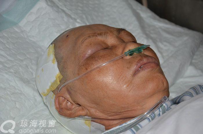 丈夫早逝,两儿残疾,自己被车撞进院还未醒,帮帮她吧