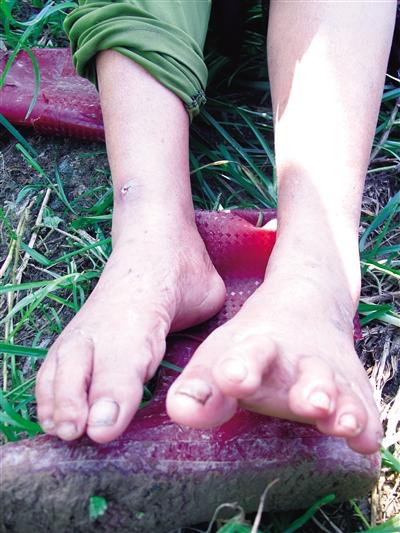 琼海逢龙村村民被红蚂蚁咬伤 盼农技人员指导灭蚁